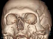 Здоровье, красота,  Медицинские услуги Невропатолог, цена 50 €, Фото